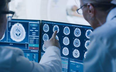 Las unidades de cefalea son viables en España
