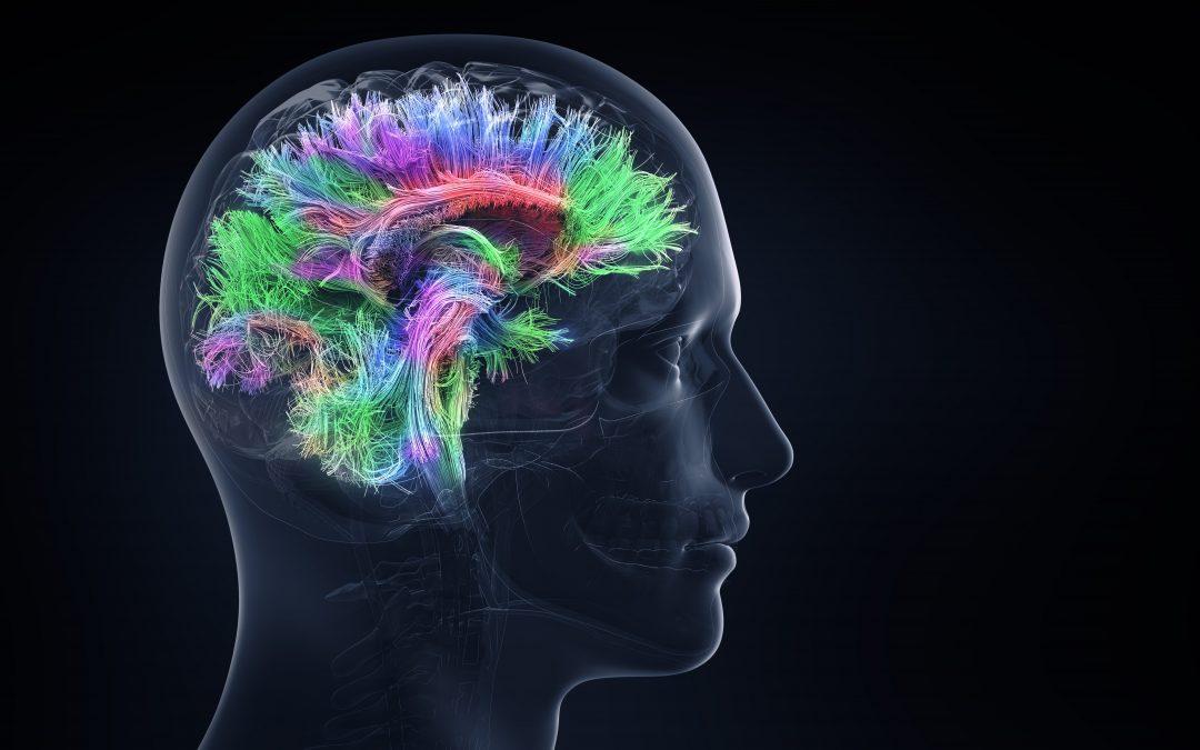 Diferencias cerebrales entre migrañosos